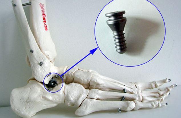 Korekcija i stabilizacija spuštenog stopala
