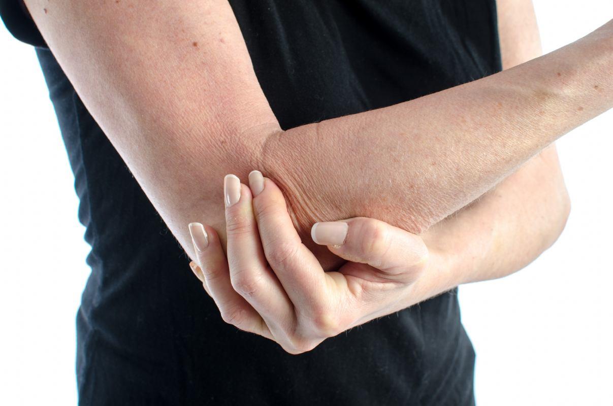 Ruptura tetive bicepsa