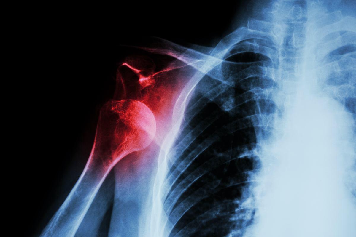 Stabilizzazione della spalla