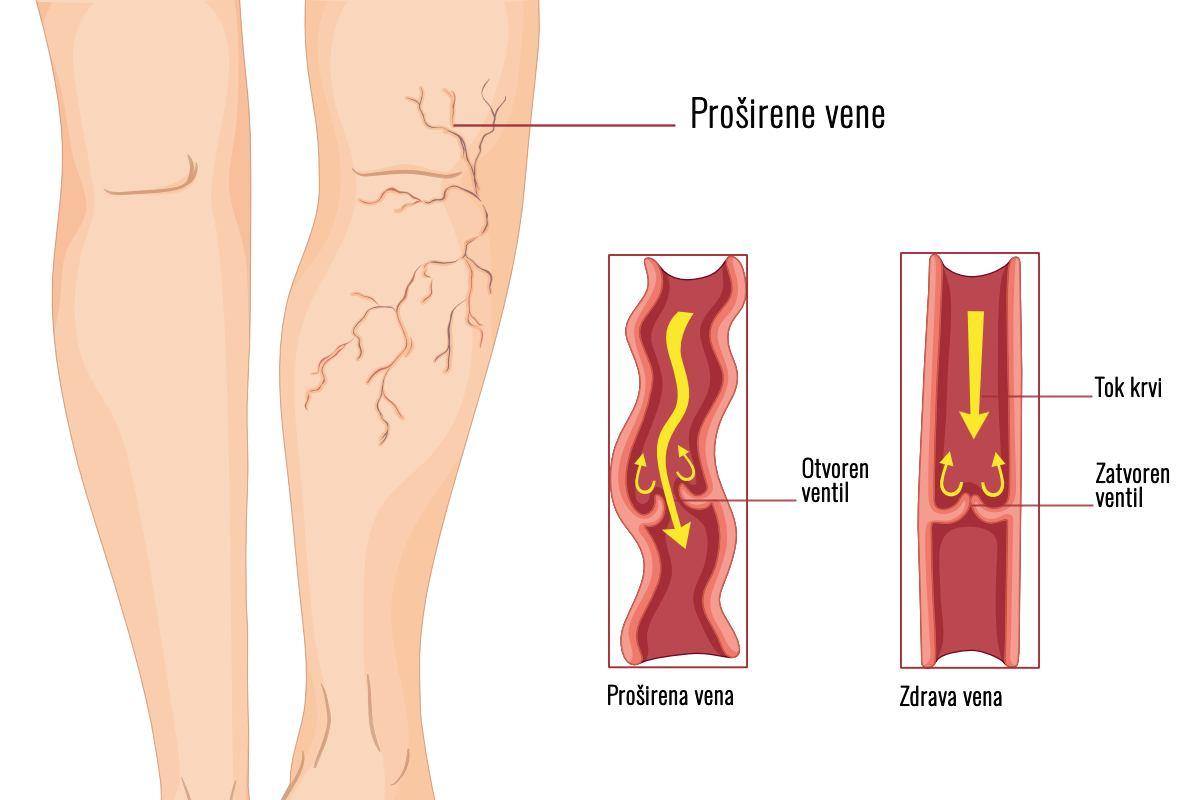 Kronična bolest vena - Uzroci, pregled i liječenje