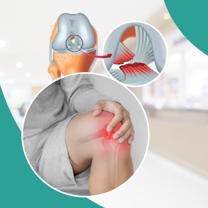 Zašto je ozljeda prednjeg križnog ligamenta toliko dramatična?